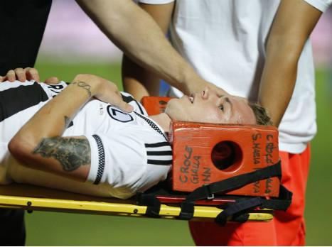 שחקן לגיה נפגע מאבן, המשחק באלבניה פוצץ
