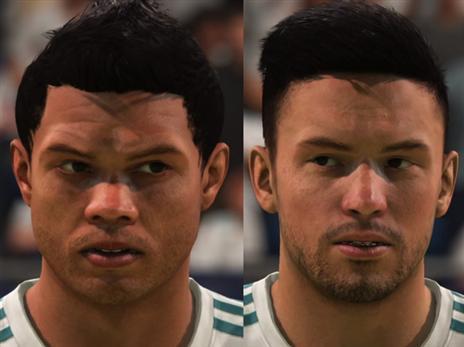 אסניסו וקארסקו רק חלק מהשחקנים שזקוקים לתיקוני פנים במשחק.