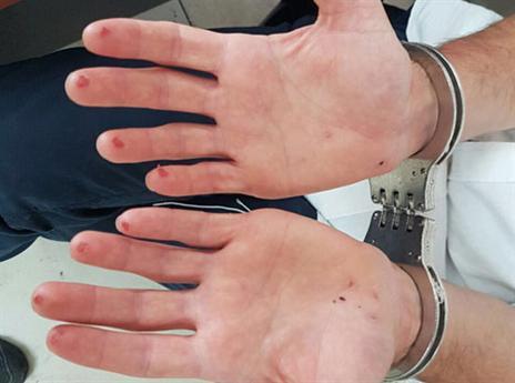 אצבעותיו החתוכות של החשוד (דוברות משטרת ישראל)